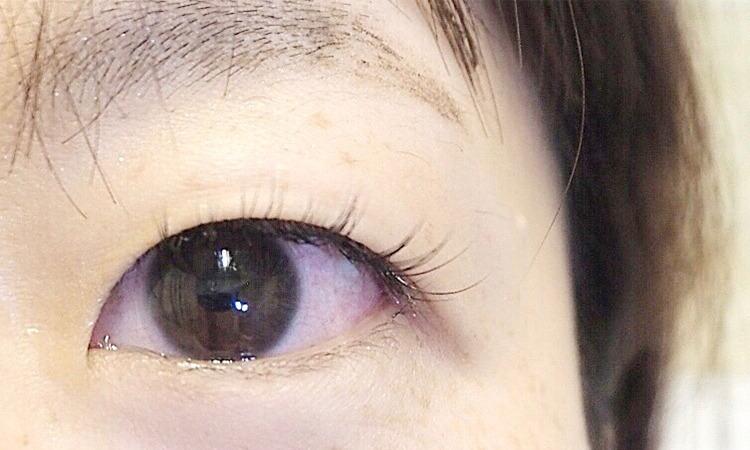 (3)あなたの白目の色は、何色ですか?