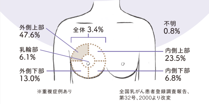 【乳がんができやすい部分】