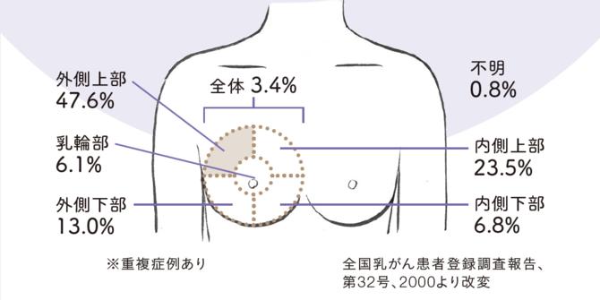 乳がん?時々おこる胸の痛みの原因は? 胸痛危険度をチェック! [mi-mollet]